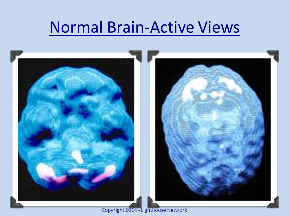 Normal Brain-Active Views Copyright 2014 - Lighthouse Network