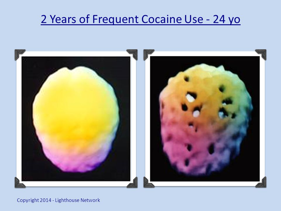 2 Years of Frequent Cocaine Use - 24 yo Copyright 2014 - Lighthouse Network