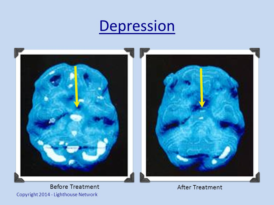 Depression Copyright 2014 - Lighthouse Network Before Treatment After Treatment