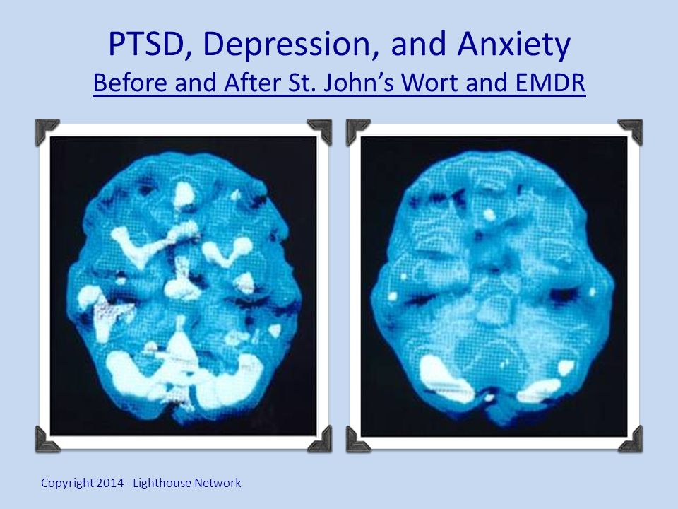 PTSD, Depression, and Anxiety Before and After St.