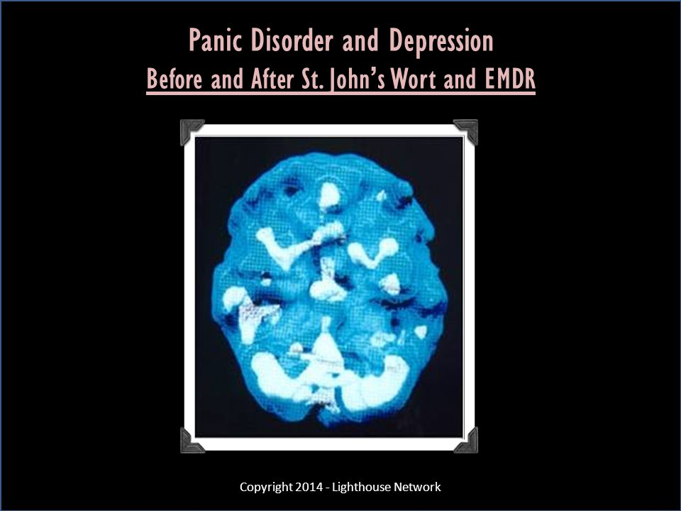 Panic Disorder and Depression Before and After St. John's Wort and EMDR Copyright 2014 - Lighthouse Network