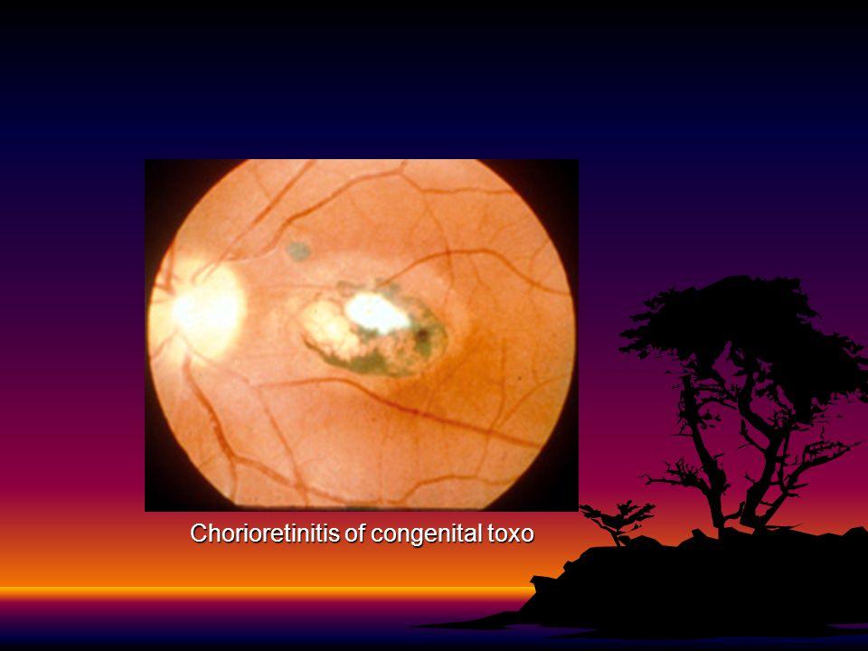 Chorioretinitis of congenital toxo
