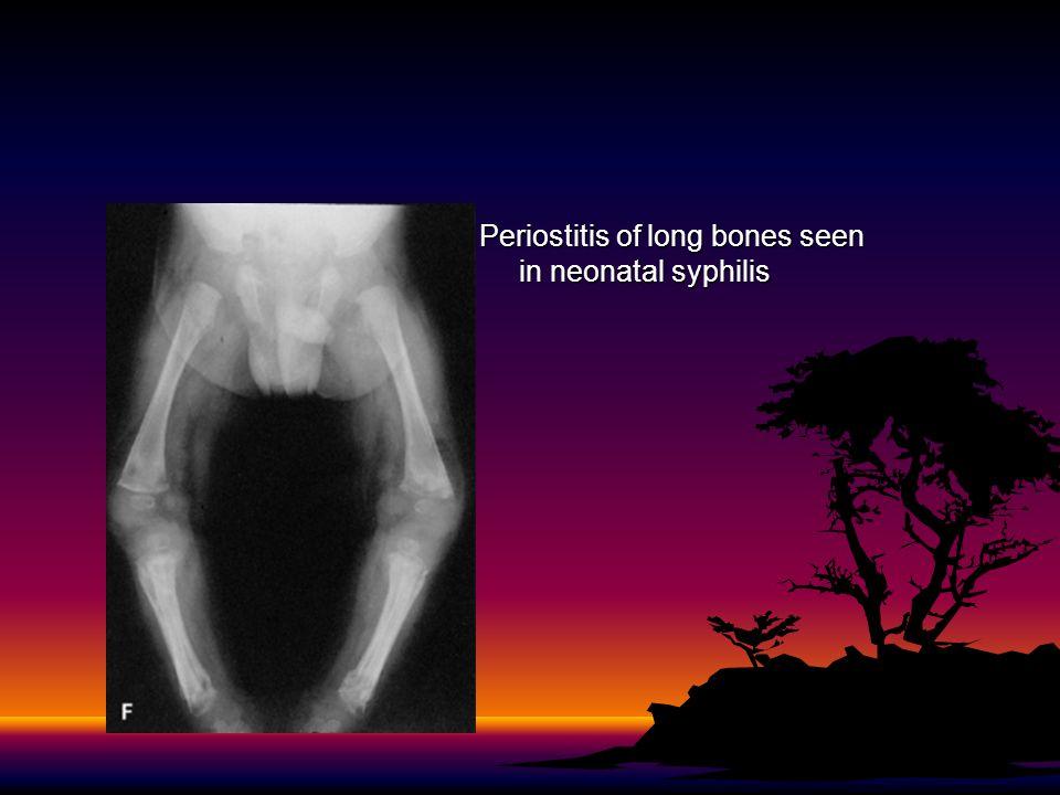 Periostitis of long bones seen in neonatal syphilis