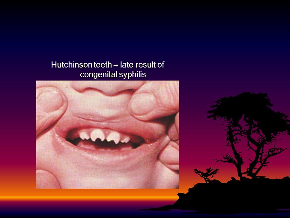 Hutchinson teeth – late result of congenital syphilis