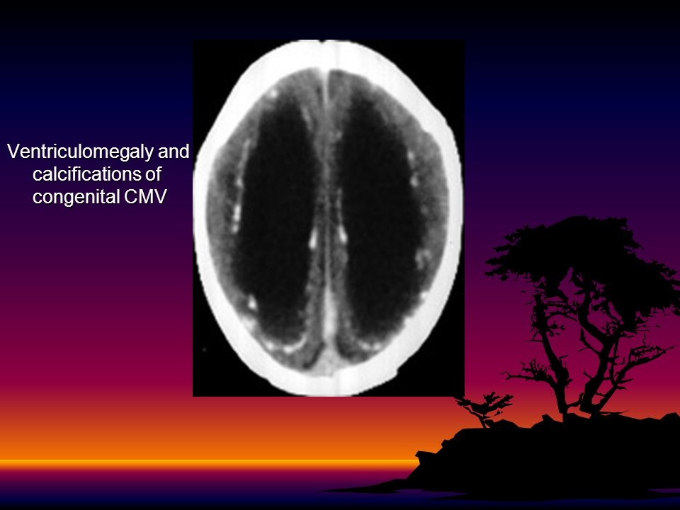 Ventriculomegaly and calcifications of congenital CMV