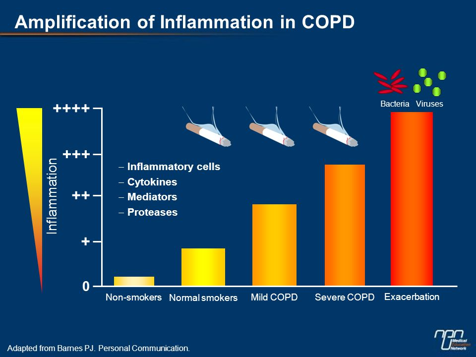 Complementary Effect of ICS/LABA on COPD Inflammation Adapted from Bourbeau et al.