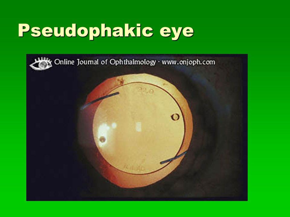 Pseudophakic eye