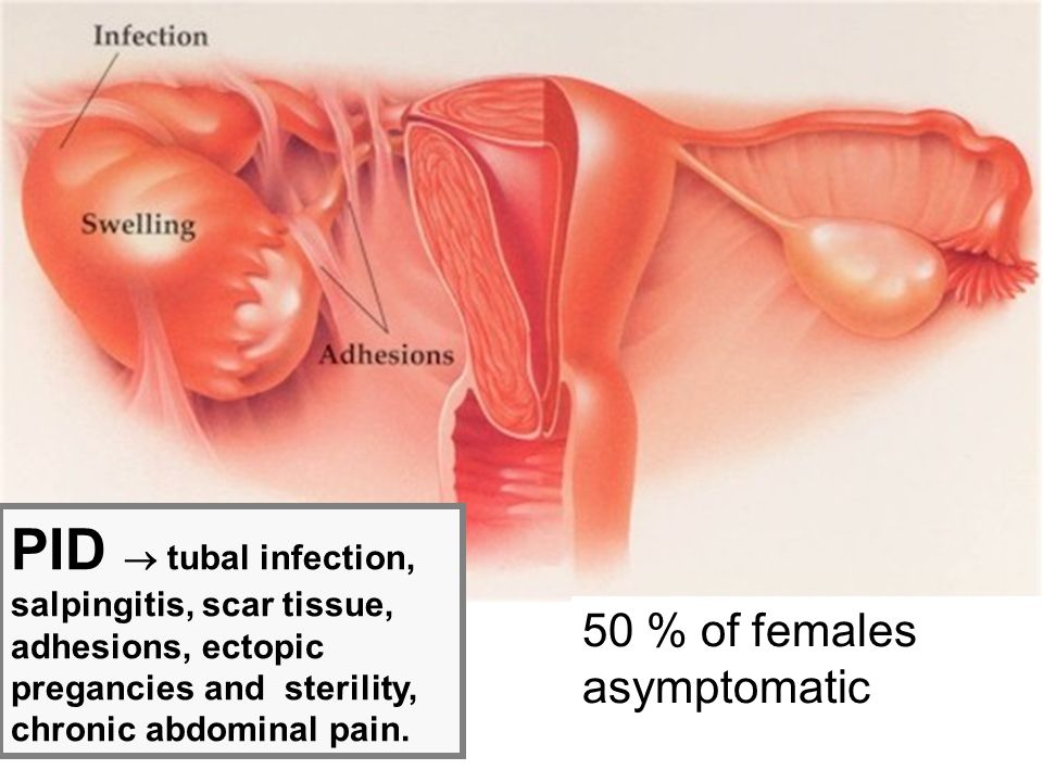 PID  tubal infection, salpingitis, scar tissue, adhesions, ectopic pregancies and sterility, chronic abdominal pain. 50 % of females asymptomatic