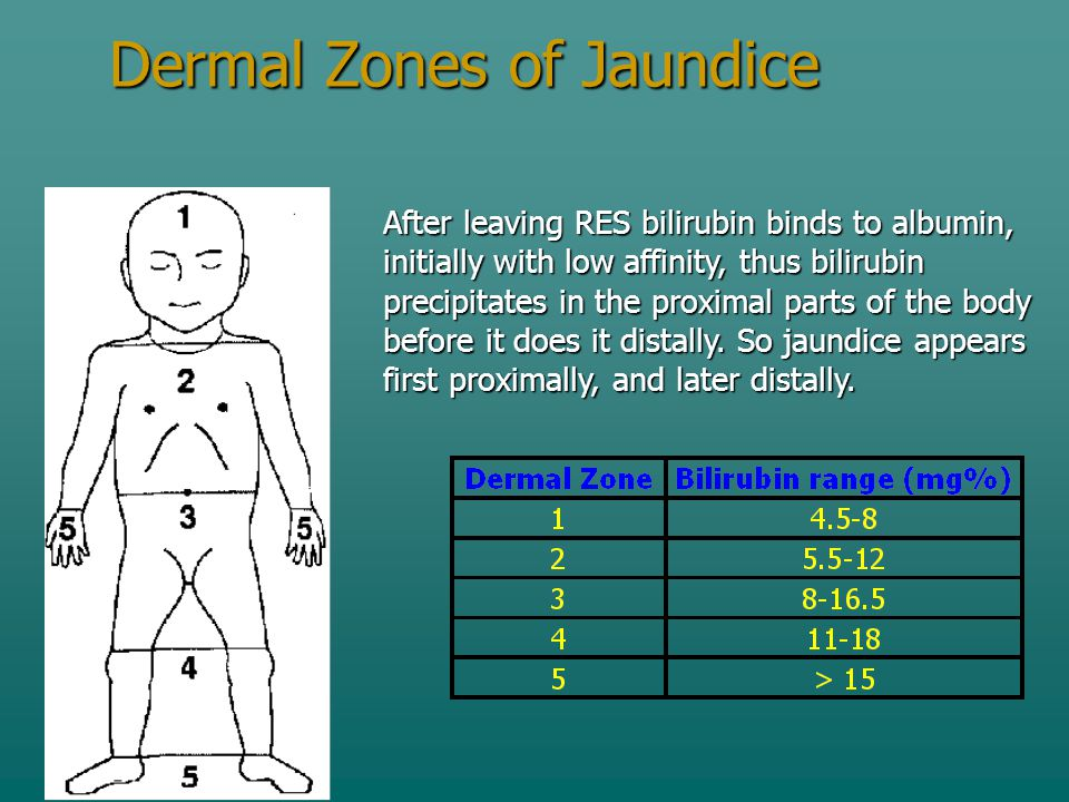 Dermal Zones of Jaundice After leaving RES bilirubin binds to albumin, initially with low affinity, thus bilirubin precipitates in the proximal parts of the body before it does it distally.