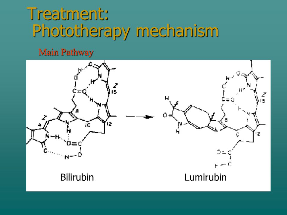 Treatment: Phototherapy mechanism BilirubinLumirubin Main Pathway