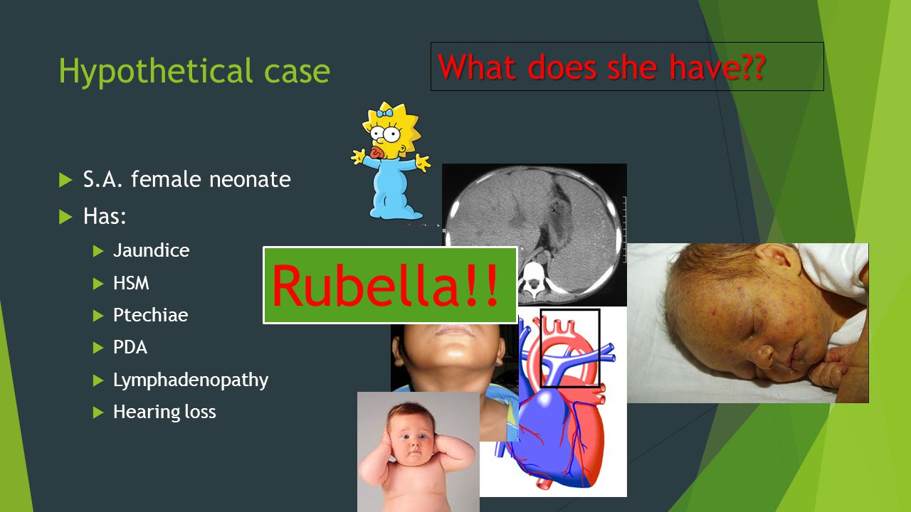 Hypothetical case  S.A. female neonate  Has:  Jaundice  HSM  Ptechiae  PDA  Lymphadenopathy  Hearing loss What does she have?? Rubella!!