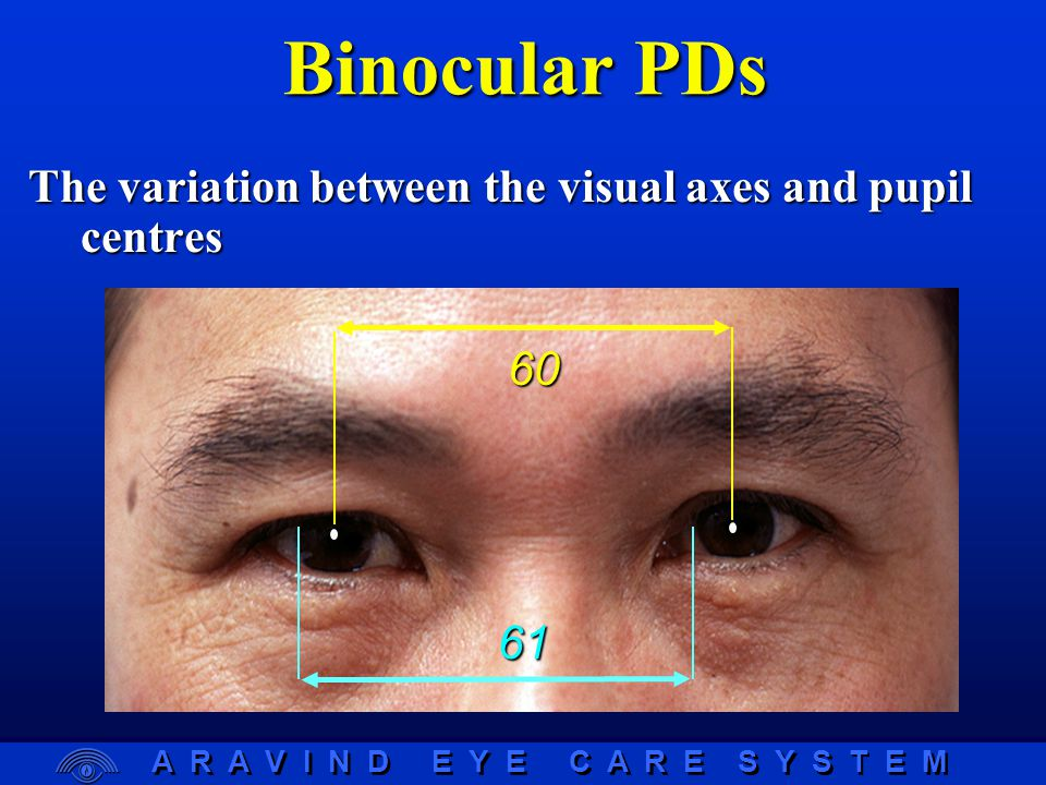 A R A V I N D E Y E C A R E S Y S T E M Binocular PDs The variation between the visual axes and pupil centres 60 61