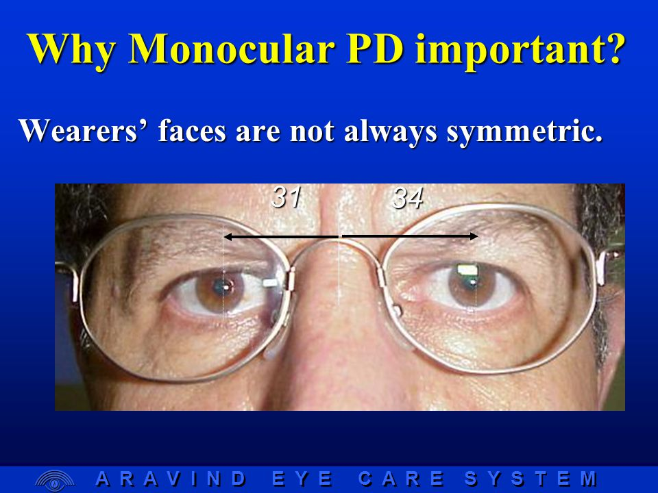 A R A V I N D E Y E C A R E S Y S T E M 3134 Why Monocular PD important.