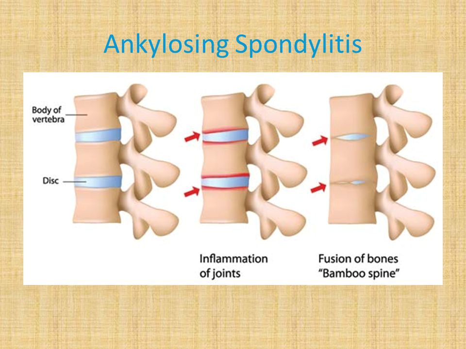 More than the spine Hot Spots -Spine -Hips (Sacroilliac Joints) -Neck -Chest -Heels -Hands -Knees -Feet -Elbows -Wrists -Ankles -Jaw
