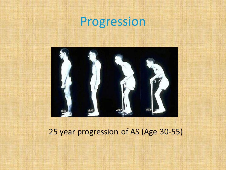 Progression 25 year progression of AS (Age 30-55)