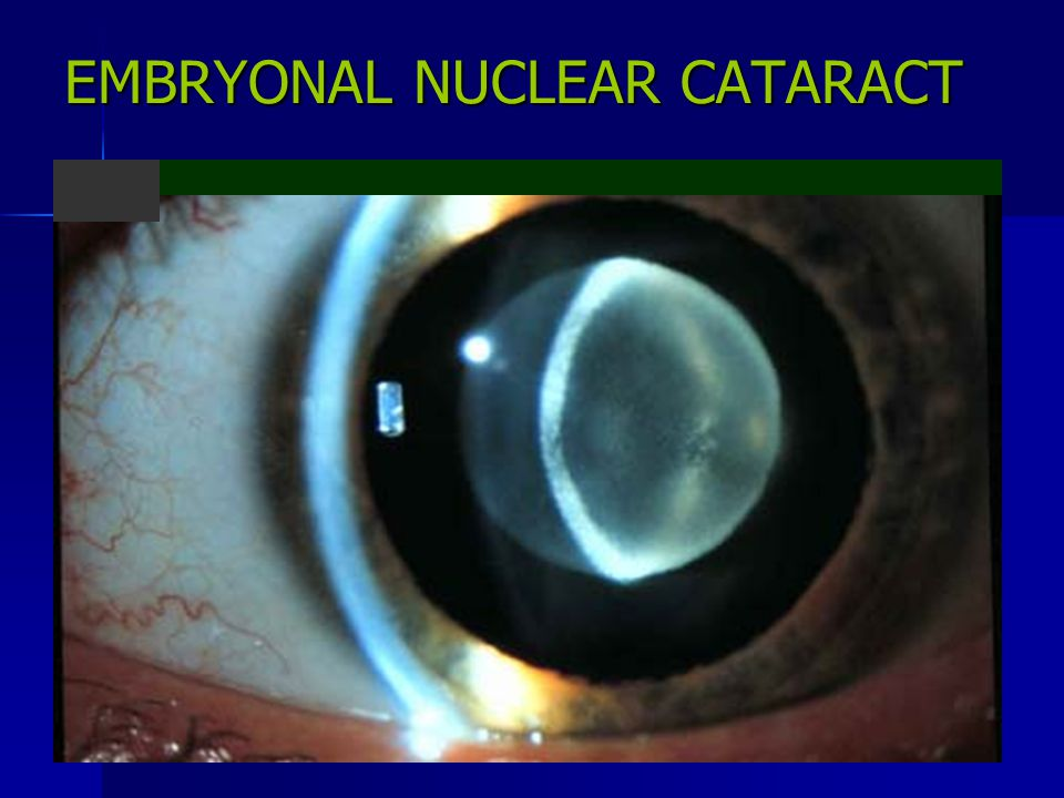 EMBRYONAL NUCLEAR CATARACT