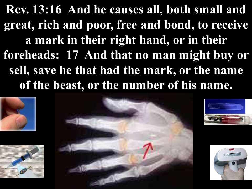 Rev. 13:16 And he causes all, both small and great, rich and poor, free and bond, to receive a mark in their right hand, or in their foreheads: 17 And
