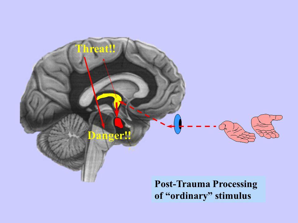 Post-trauma fear network in Amygdala Trauma produces an anatomical change in the brain