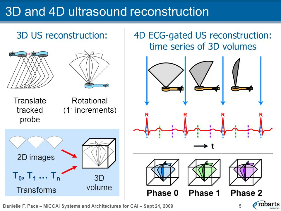 Danielle F. Pace – MICCAI Systems and Architectures for CAI – Sept 24, 2009 5 3D US reconstruction: 3D and 4D ultrasound reconstruction Translate trac