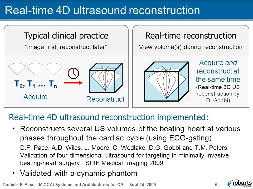 "Danielle F. Pace – MICCAI Systems and Architectures for CAI – Sept 24, 2009 6 Real-time 4D ultrasound reconstruction Typical clinical practice ""image"