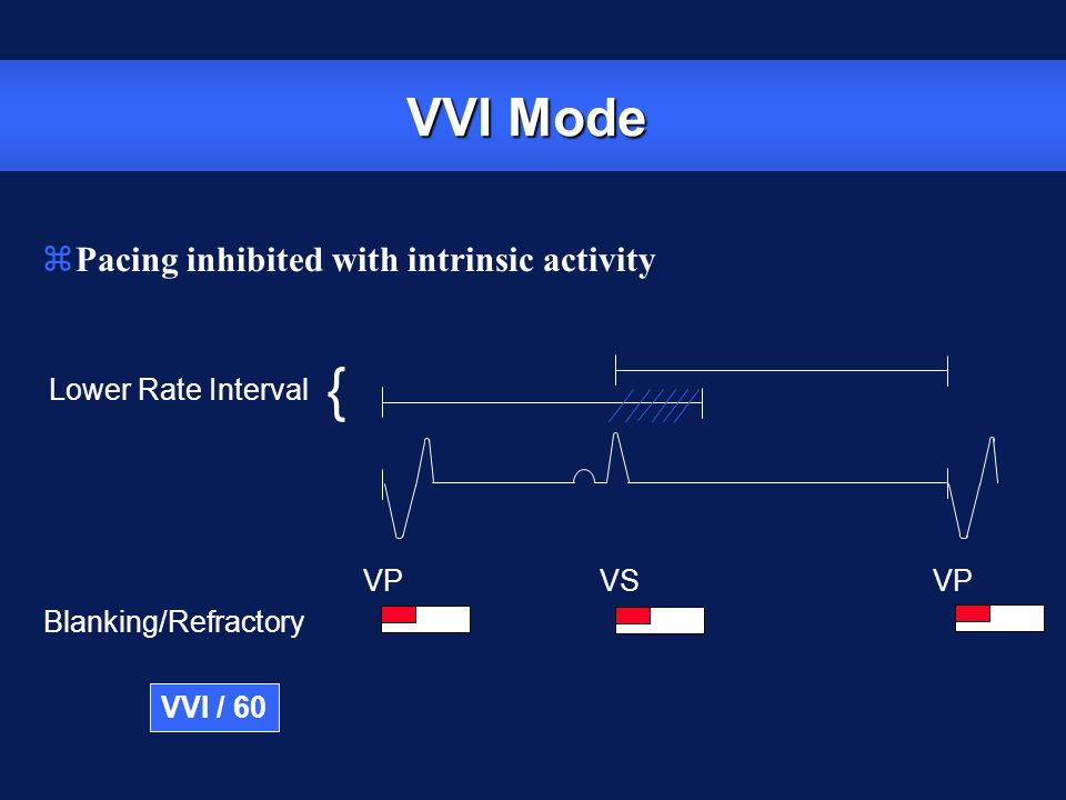 VVI Mode Lower Rate Interval VP VS Blanking/Refractory VP { VVI / 60 zPacing inhibited with intrinsic activity