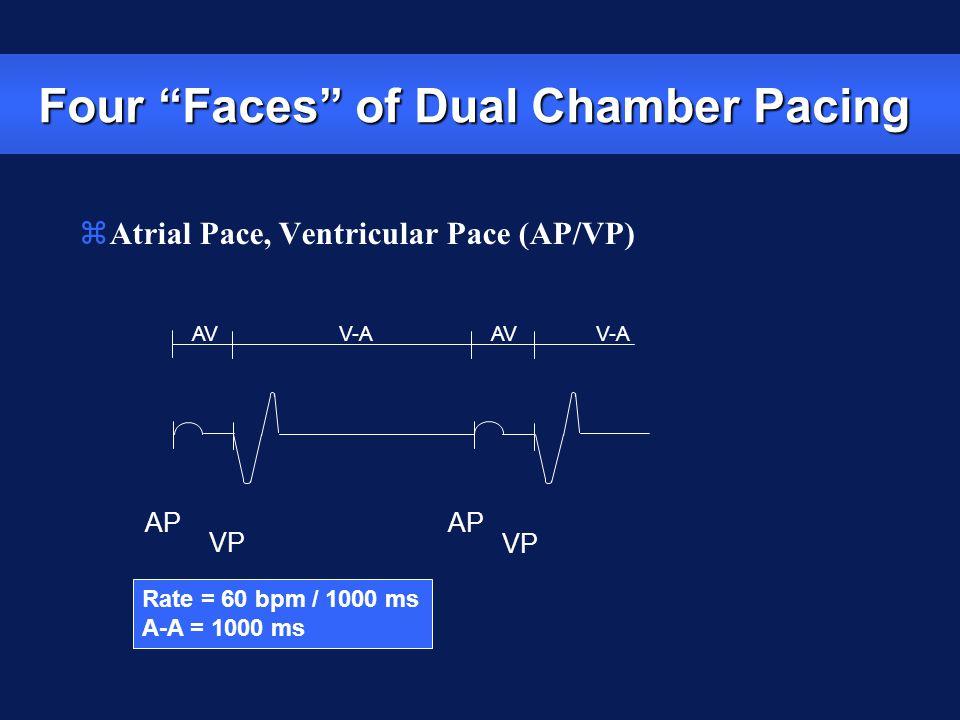 """Rate = 60 bpm / 1000 ms A-A = 1000 ms AP VP AP VP V-A AV V-A AV zAtrial Pace, Ventricular Pace (AP/VP) Four """"Faces"""" of Dual Chamber Pacing"""