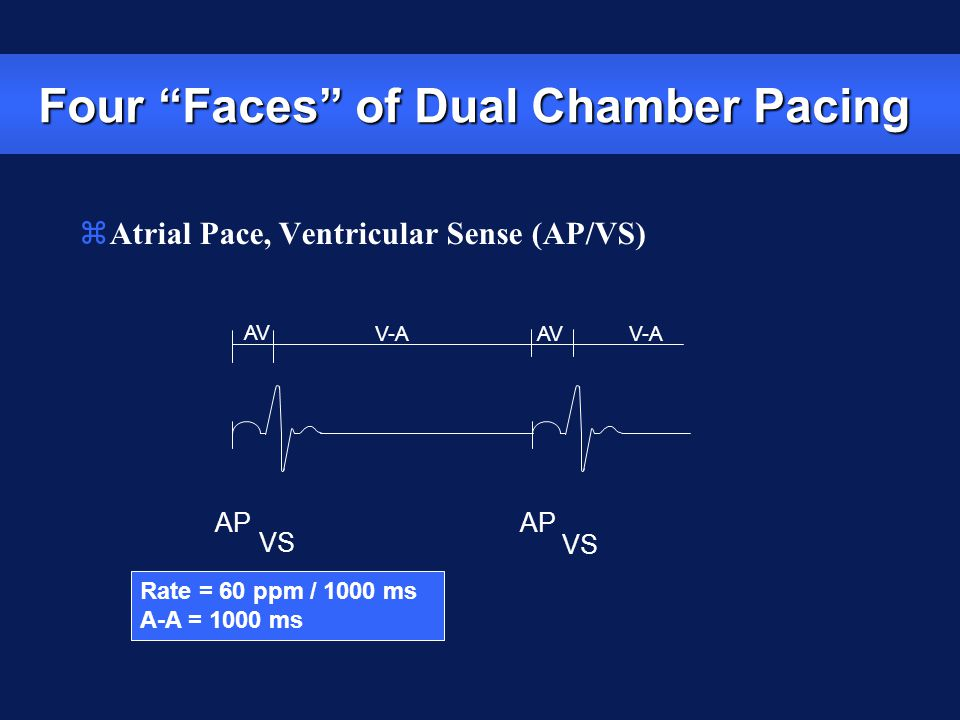 """Rate = 60 ppm / 1000 ms A-A = 1000 ms AP VS AP VS V-A AV V-A AV zAtrial Pace, Ventricular Sense (AP/VS) Four """"Faces"""" of Dual Chamber Pacing"""