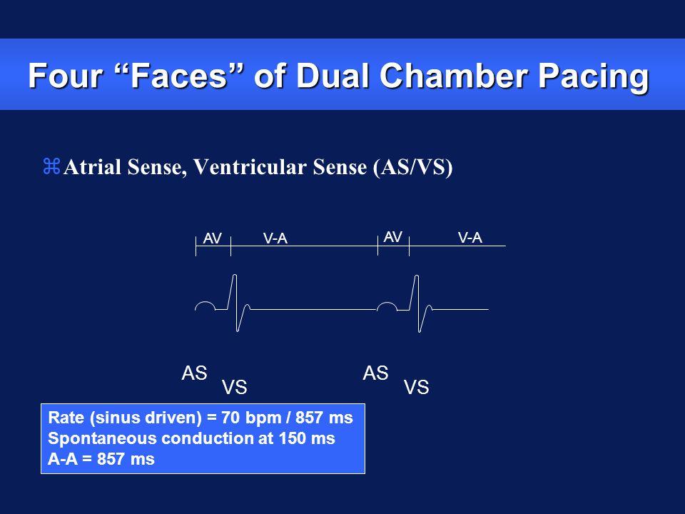 Rate (sinus driven) = 70 bpm / 857 ms Spontaneous conduction at 150 ms A-A = 857 ms AS VS AS VS V-A AV V-A zAtrial Sense, Ventricular Sense (AS/VS) Fo