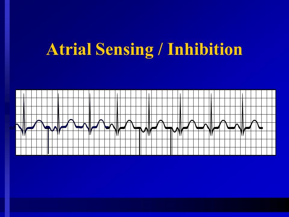 Atrial Sensing / Inhibition