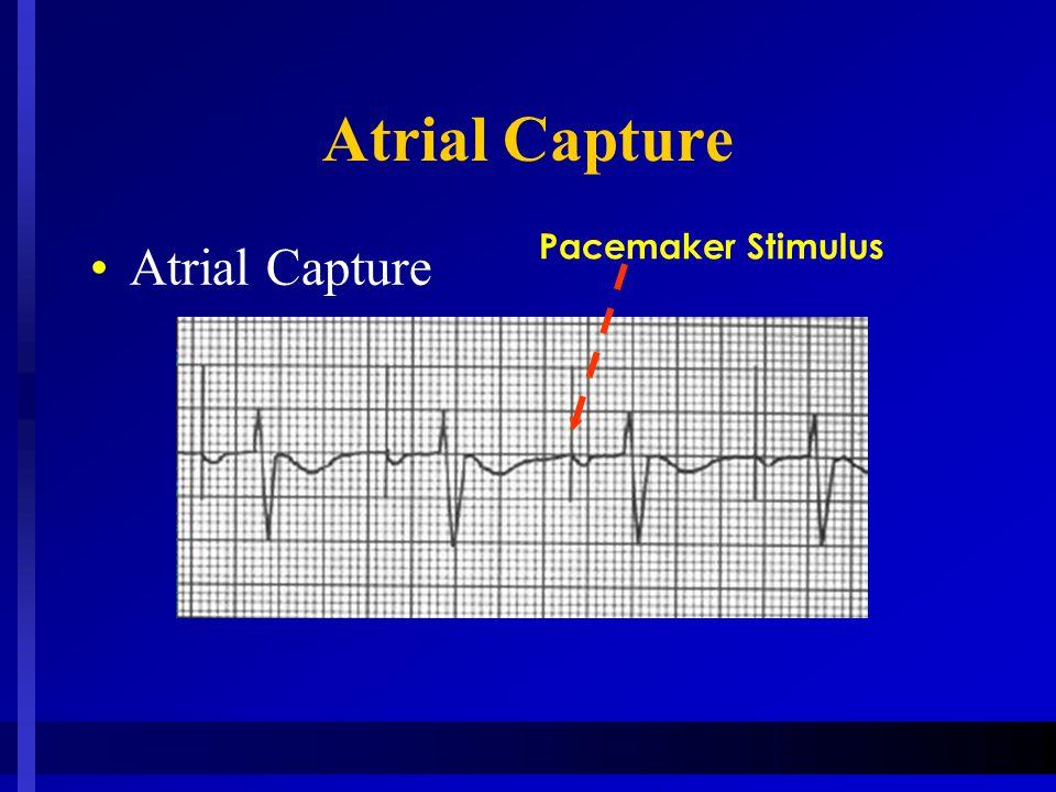 Atrial Capture Pacemaker Stimulus Atrial Capture