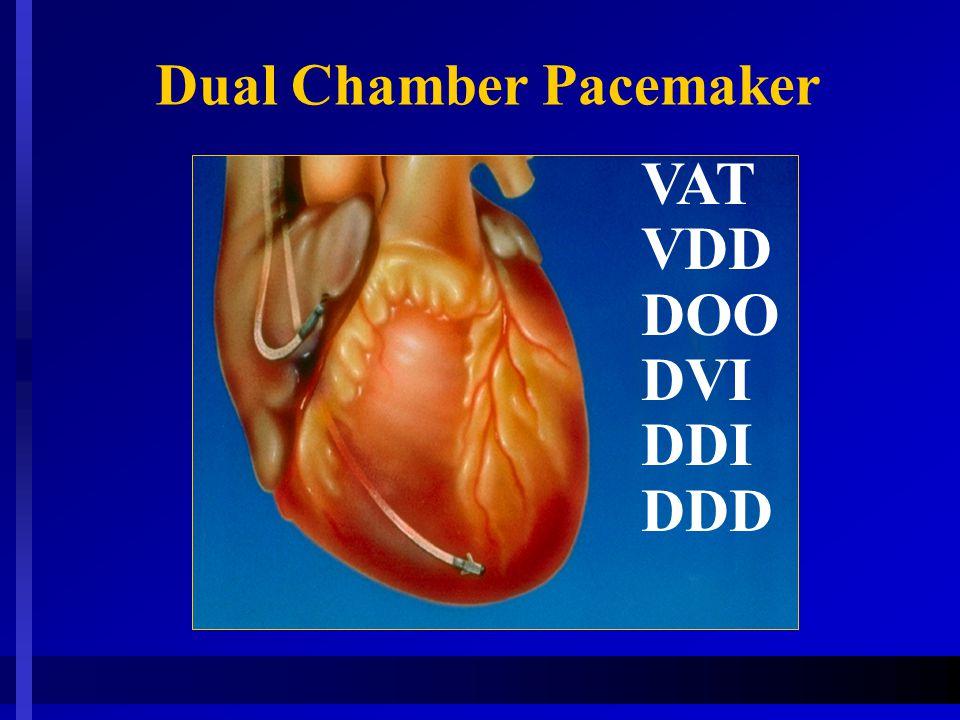 VAT VDD DOO DVI DDI DDD Dual Chamber Pacemaker