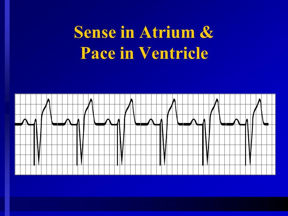 Sense in Atrium & Pace in Ventricle