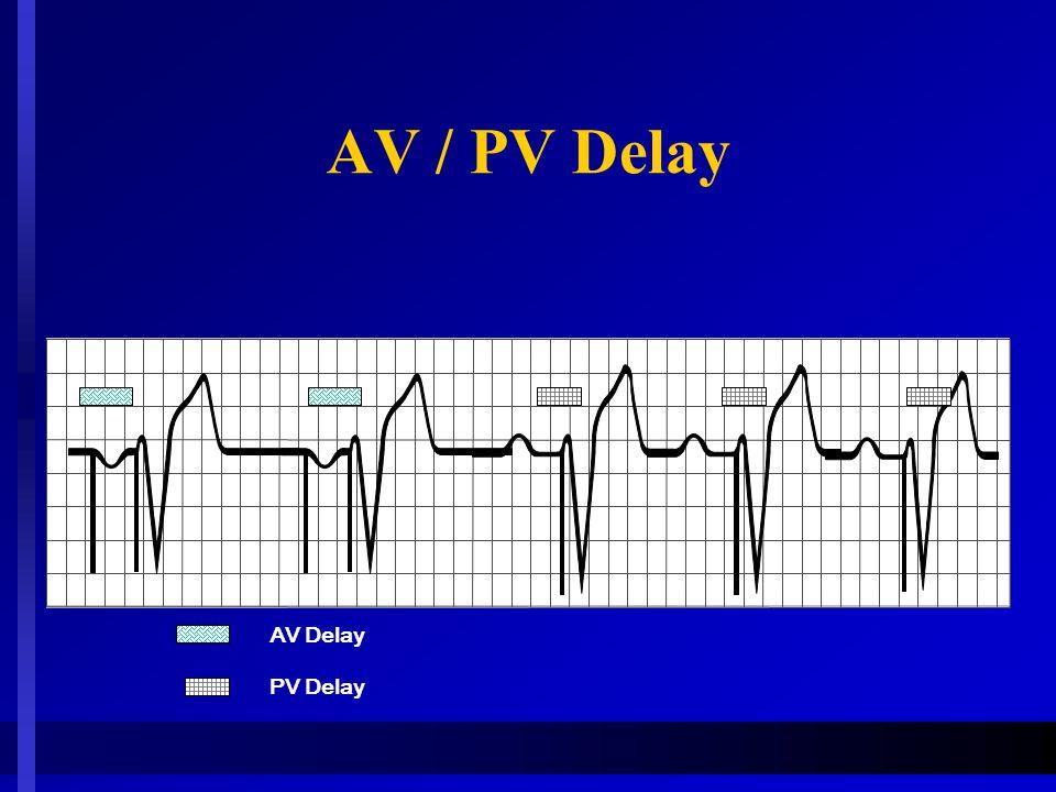 AV / PV Delay PV Delay AV Delay