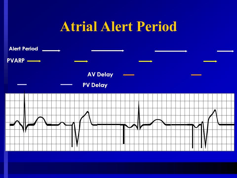 Atrial Alert Period PVARP Alert Period AV Delay PV Delay