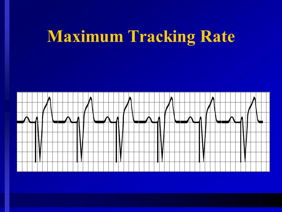 Maximum Tracking Rate