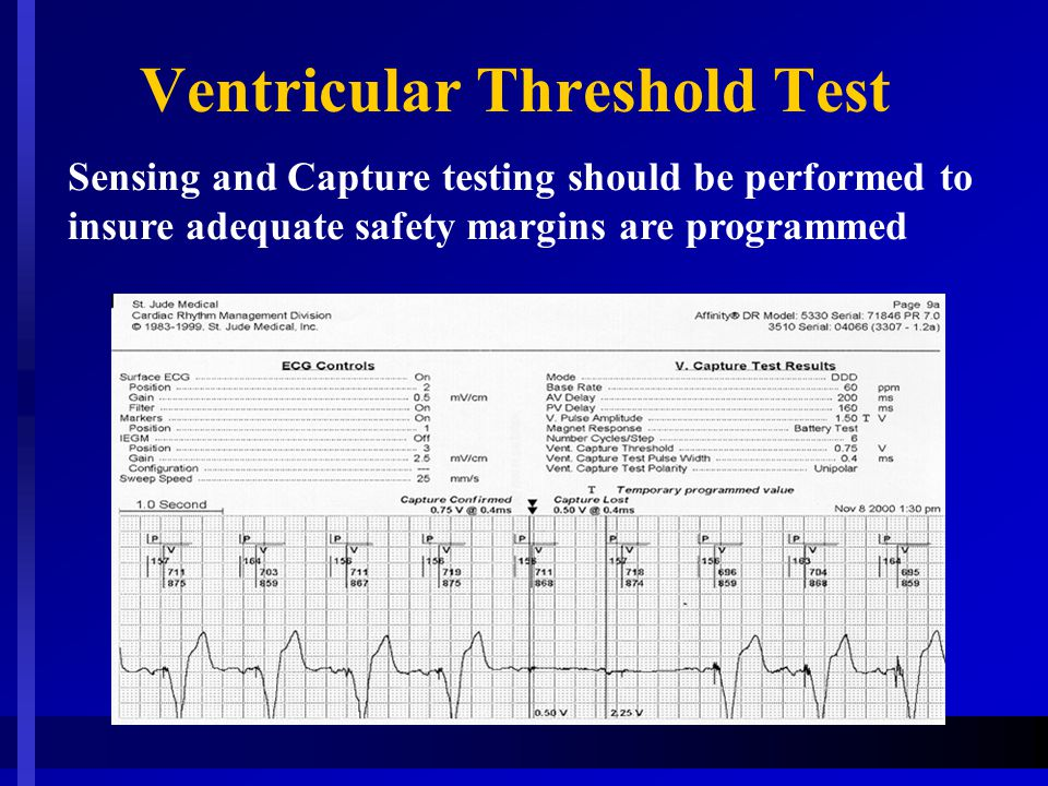 Ventricular Threshold Test Sensing and Capture testing should be performed to insure adequate safety margins are programmed