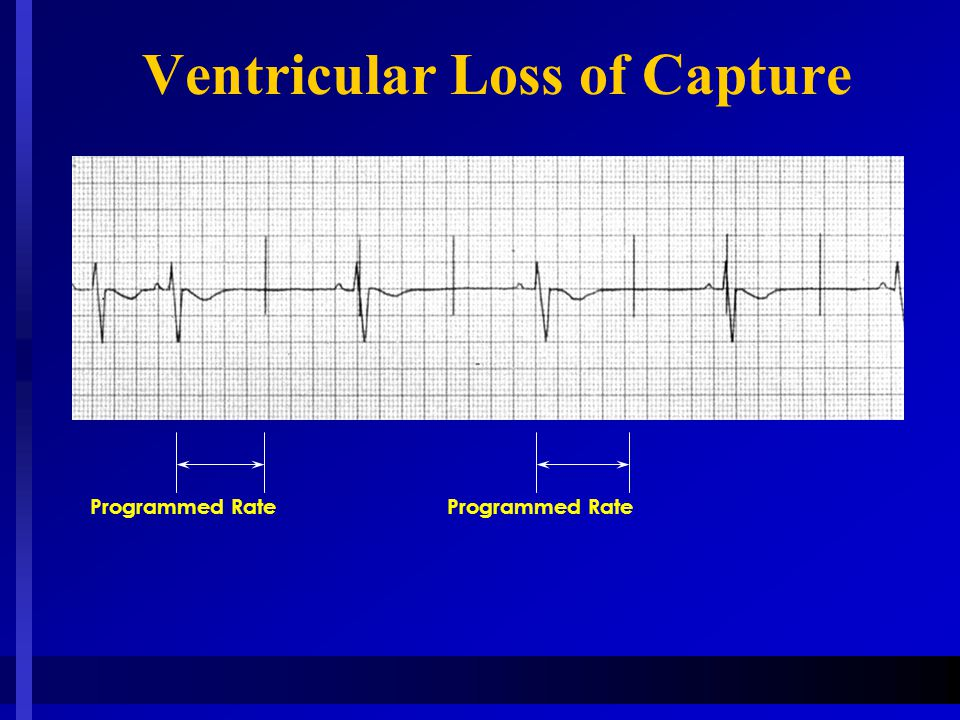 Ventricular Loss of Capture Programmed Rate