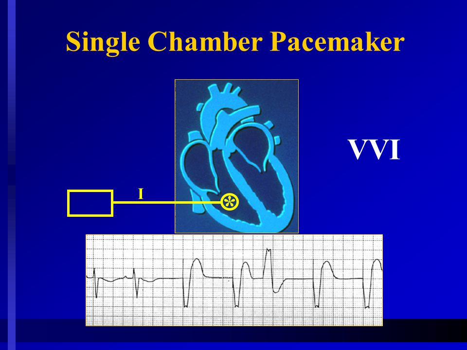 VVI I * Single Chamber Pacemaker