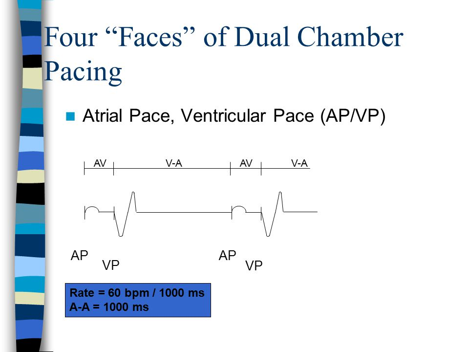 "Rate = 60 bpm / 1000 ms A-A = 1000 ms AP VP AP VP V-A AV V-A AV Atrial Pace, Ventricular Pace (AP/VP) Four ""Faces"" of Dual Chamber Pacing"