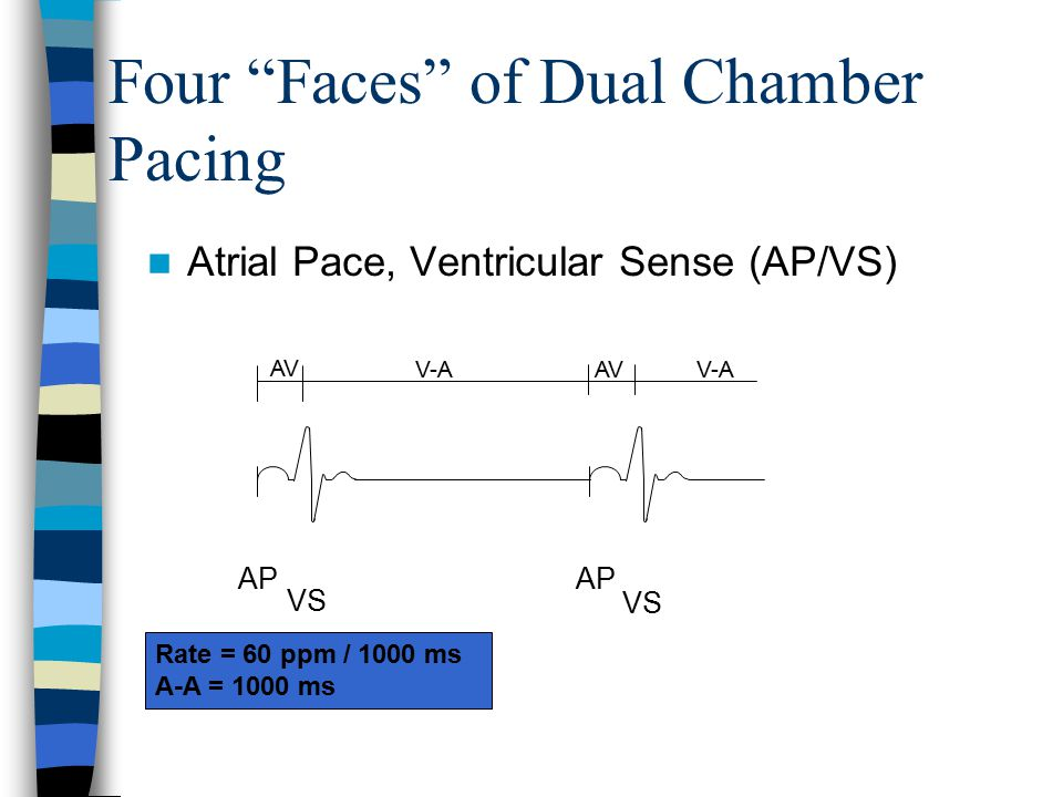 "Rate = 60 ppm / 1000 ms A-A = 1000 ms AP VS AP VS V-A AV V-A AV Atrial Pace, Ventricular Sense (AP/VS) Four ""Faces"" of Dual Chamber Pacing"