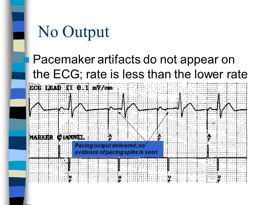 No Output Pacemaker artifacts do not appear on the ECG; rate is less than the lower rate Pacing output delivered; no evidence of pacing spike is seen