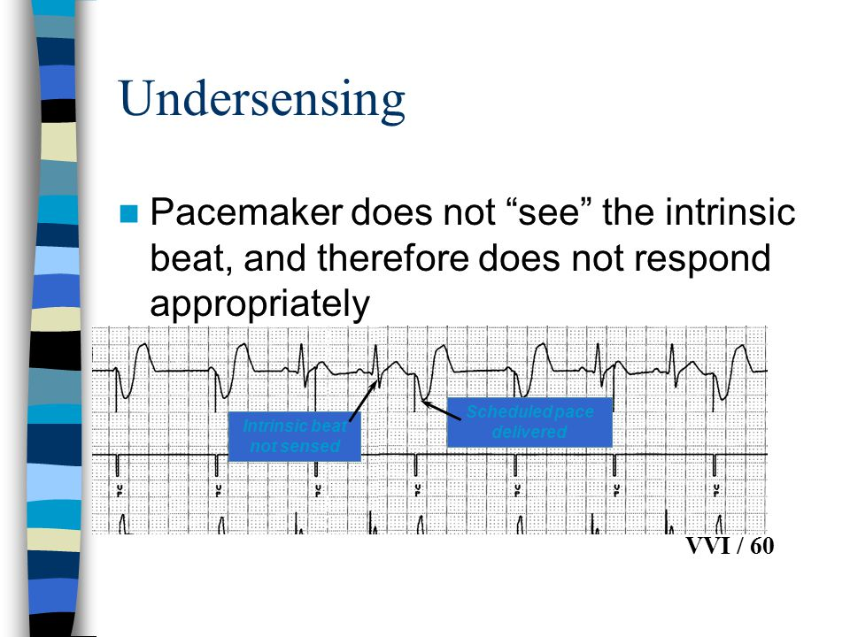 "Undersensing Pacemaker does not ""see"" the intrinsic beat, and therefore does not respond appropriately Intrinsic beat not sensed Scheduled pace delive"