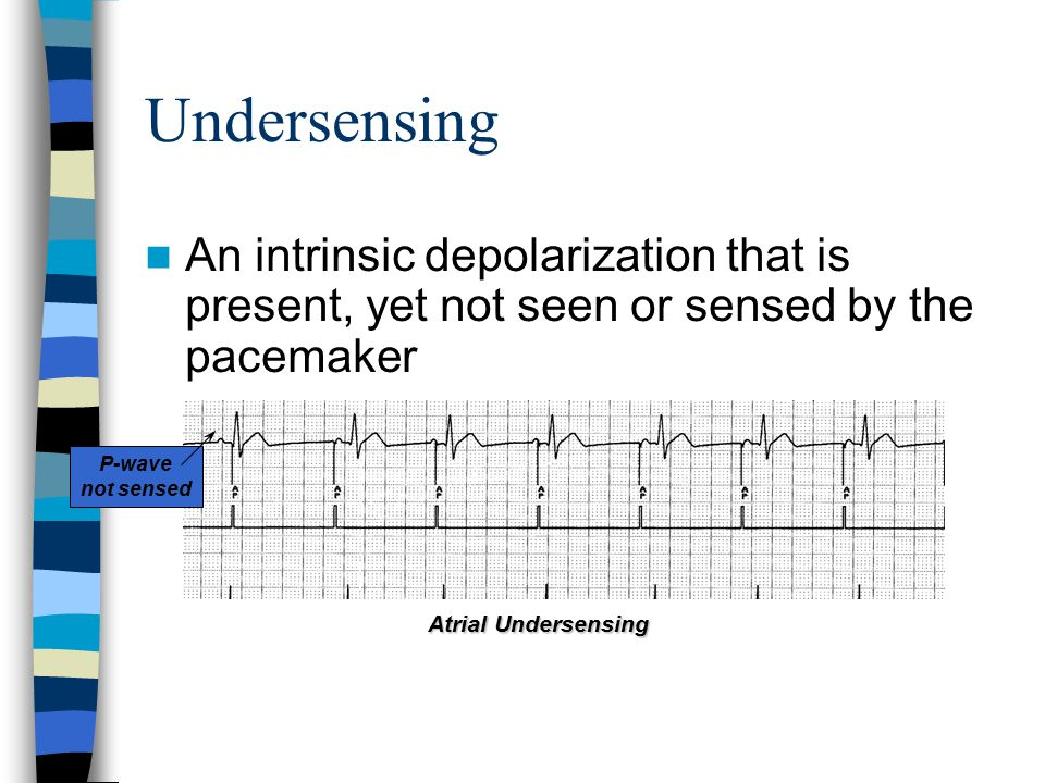 Undersensing An intrinsic depolarization that is present, yet not seen or sensed by the pacemaker P-wave not sensed Atrial Undersensing