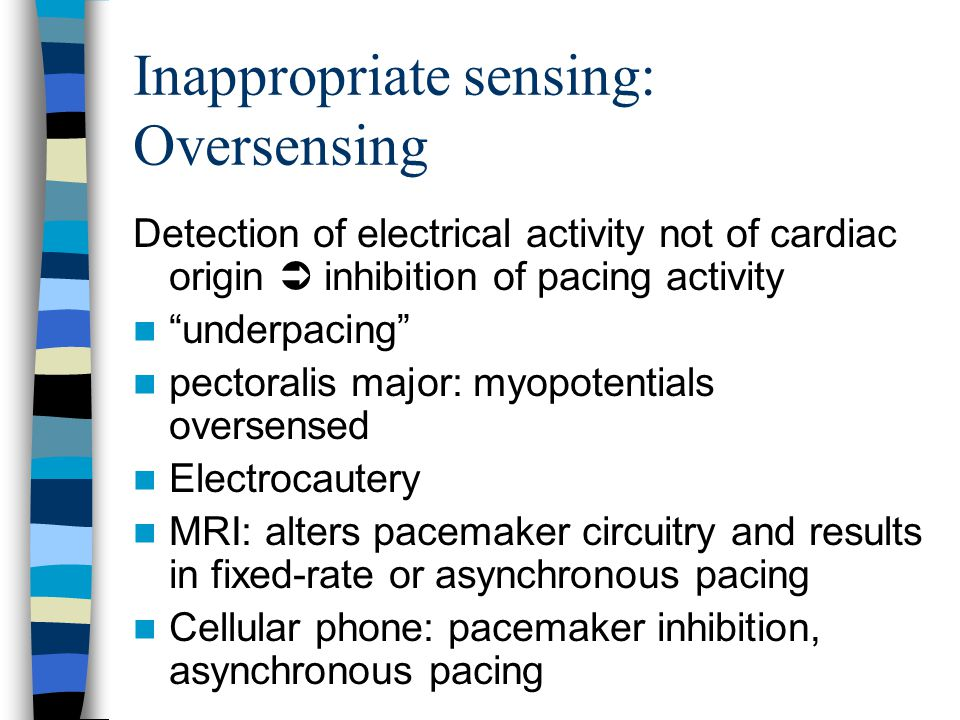 "Inappropriate sensing: Oversensing Detection of electrical activity not of cardiac origin  inhibition of pacing activity ""underpacing"" pectoralis maj"