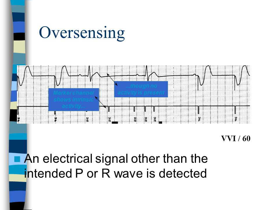 Oversensing An electrical signal other than the intended P or R wave is detected Marker channel shows intrinsic activity......though no activity is pr