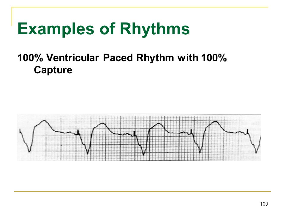100 Examples of Rhythms 100% Ventricular Paced Rhythm with 100% Capture