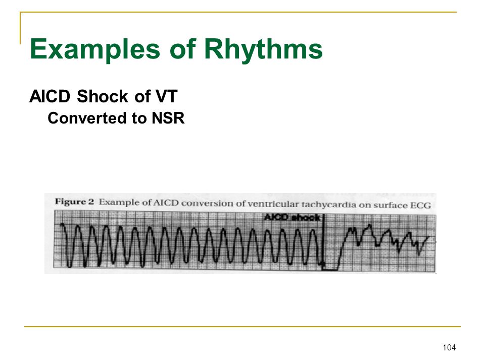 104 Examples of Rhythms AICD Shock of VT Converted to NSR