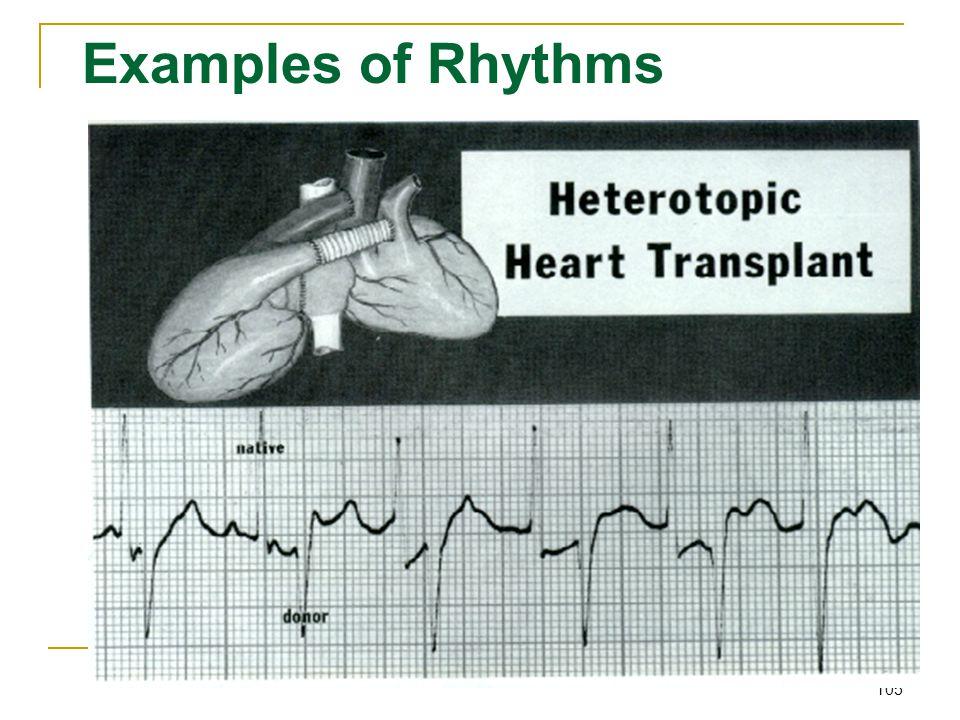 105 Examples of Rhythms