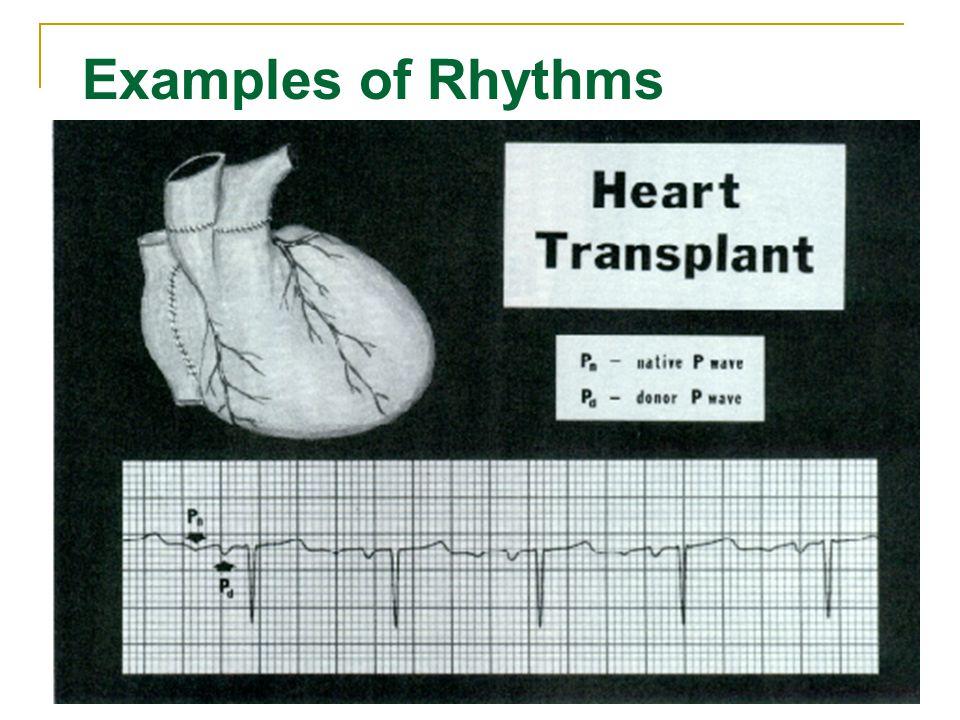 106 Examples of Rhythms