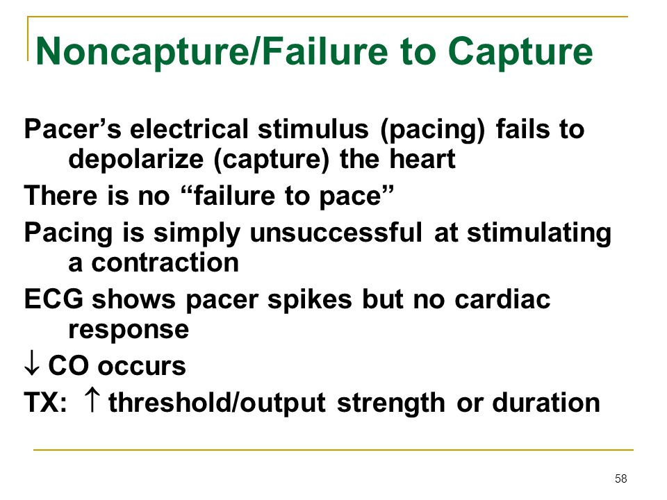 """58 Noncapture/Failure to Capture Pacer's electrical stimulus (pacing) fails to depolarize (capture) the heart There is no """"failure to pace"""" Pacing is"""